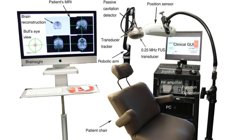 Ultrasound method restores dopaminergic pathway in brain at Parkinson's early stages