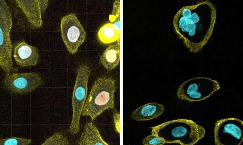 Researchers discover new cause of cell aging
