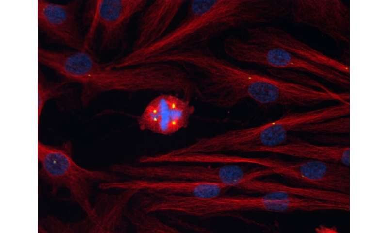 Researchers probe cell division defects to gain insight into cancer