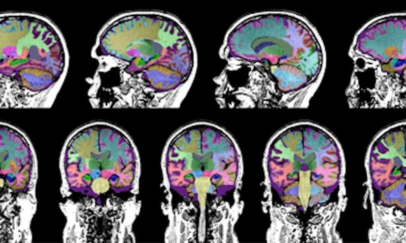 Study identifies brain injury as a cause of dementia in some older adults