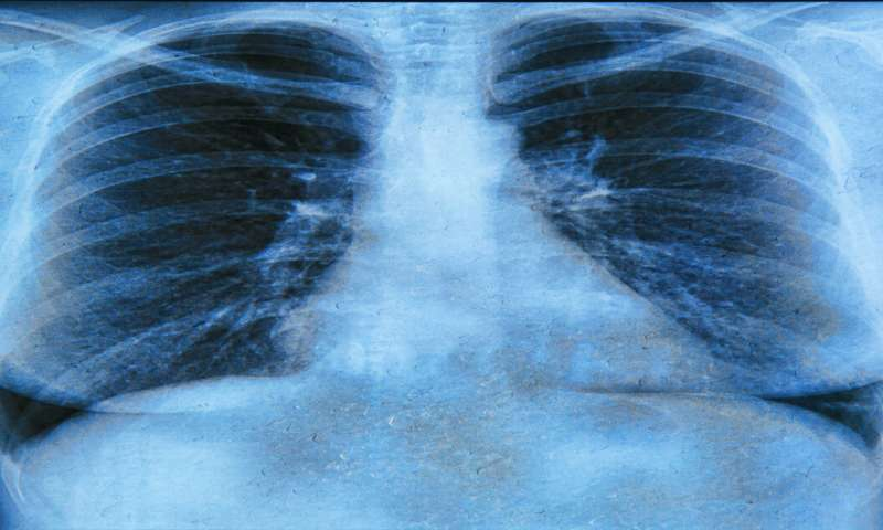 Researchers find window of opportunity for treatment of early cystic fibrosis lung infections