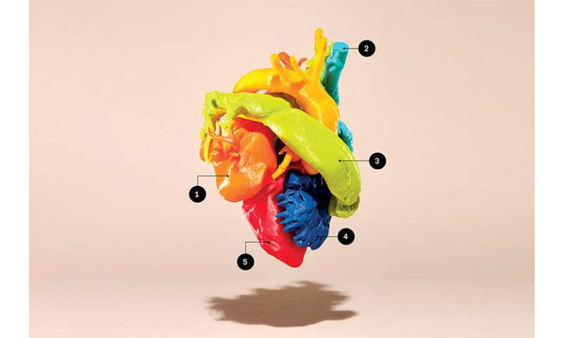 3-D printers create perfect models of life-sized human hearts, spines and other body parts