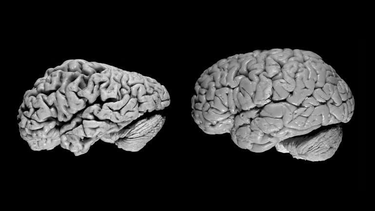 Artificial intelligence can detect Alzheimer's disease in brain scans six years before a diagnosis