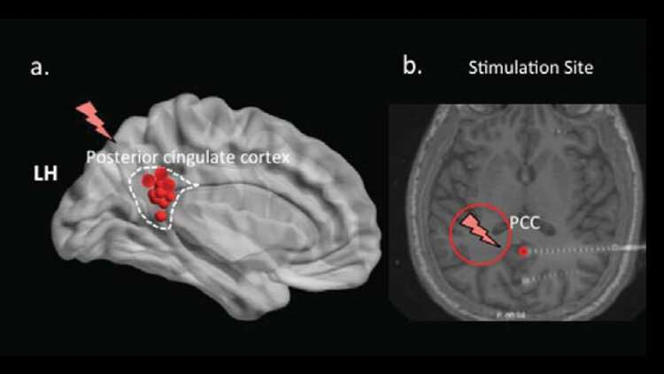 Deep brain stimulation modifies memory