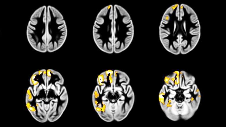 Developmental changes in the brain may influence how often adolescents get drunk