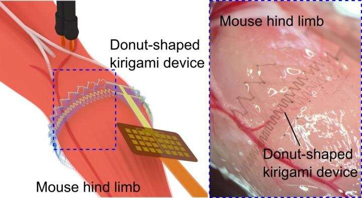 Electronics integrated to the muscle via 'Kirigami'
