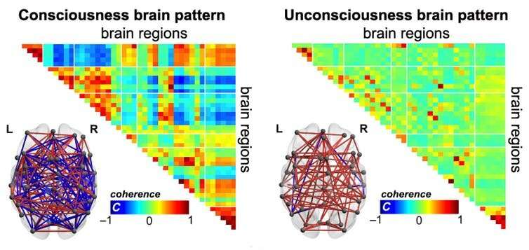 How we identified brain patterns of consciousness
