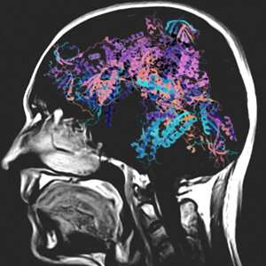 International team of scientists detect cause of rare pediatric brain disorder