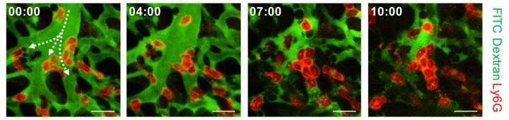 KAIST identifies the cause of sepsis-induced lung injury