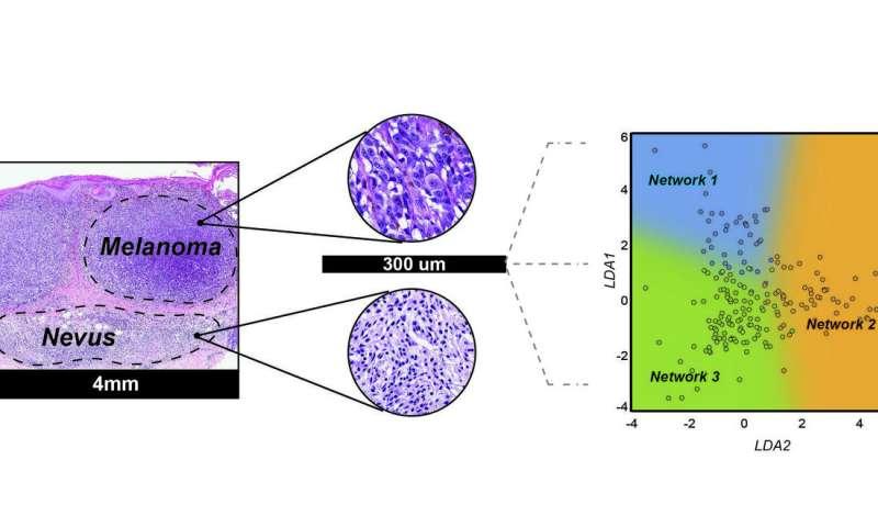 Novel strategy using microRNA biomarkers can distinguish melanomas from nevi