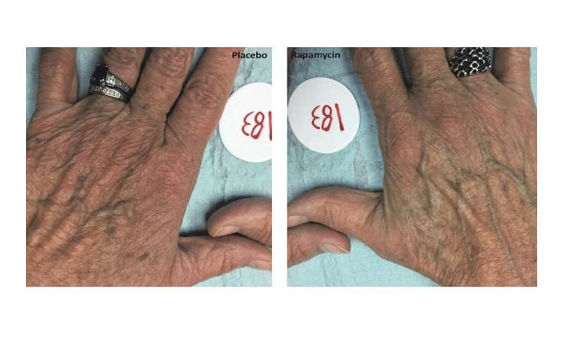 Rapamycin may slow skin aging, Drexel study reports