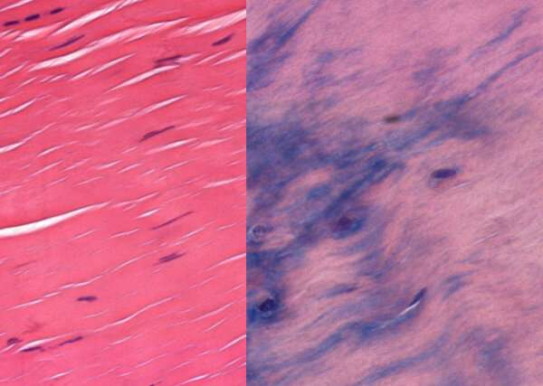 Searching for better treatments for irritated tendons
