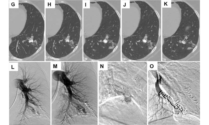 Smoking impedes embolization treatment in lungs