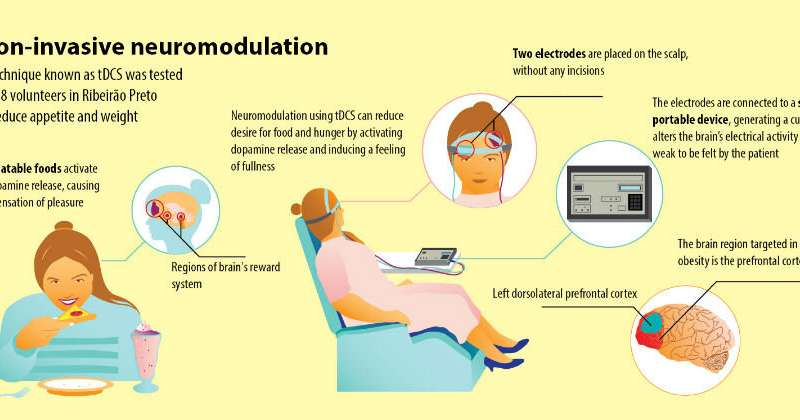 Study evaluates effects of noninvasive neuromodulation used to treat obesity