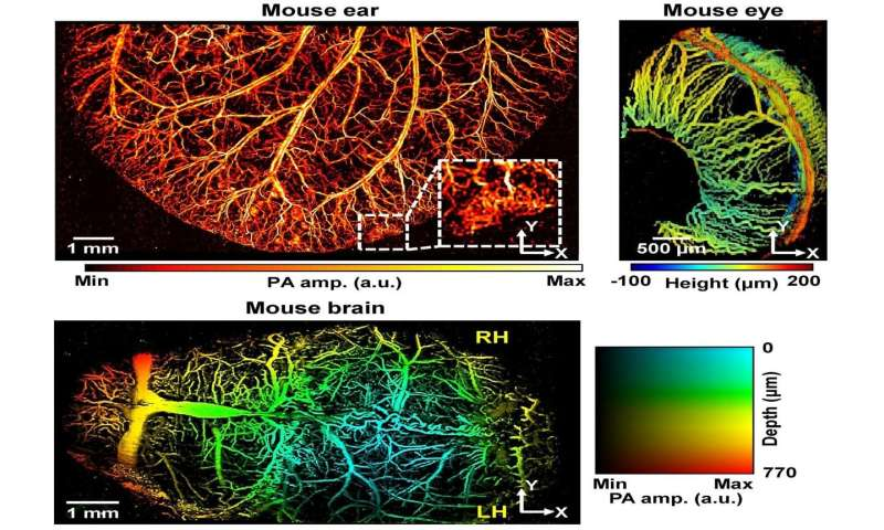 Super-resolution photoacoustic microscopy finds clogged blood vessels