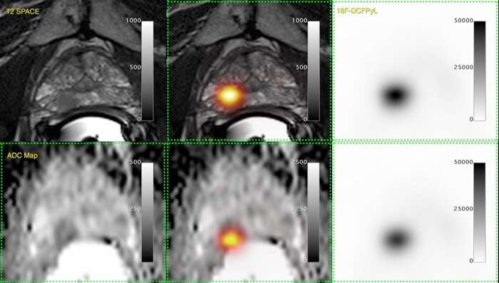 Study explores new tracer in prostate cancer hunt