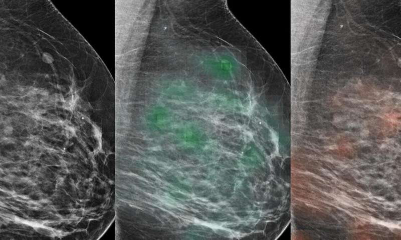 Combination of AI and radiologists more accurately identified breast cancer