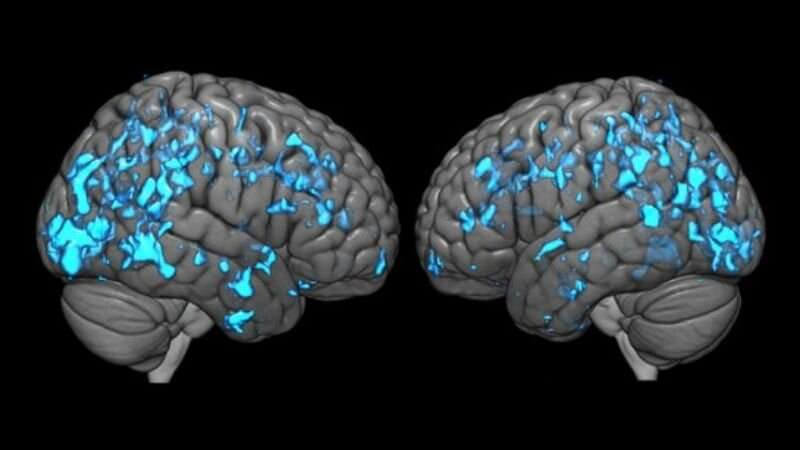 Deep brain stimulation eases Parkinson's disease symptoms by boosting dopamine