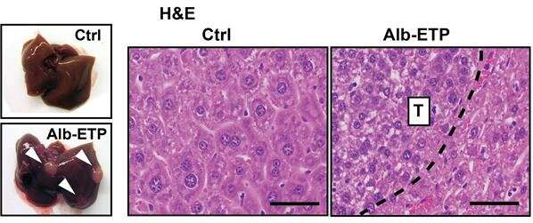 New therapeutic avenue in the fight against chronic liver disease