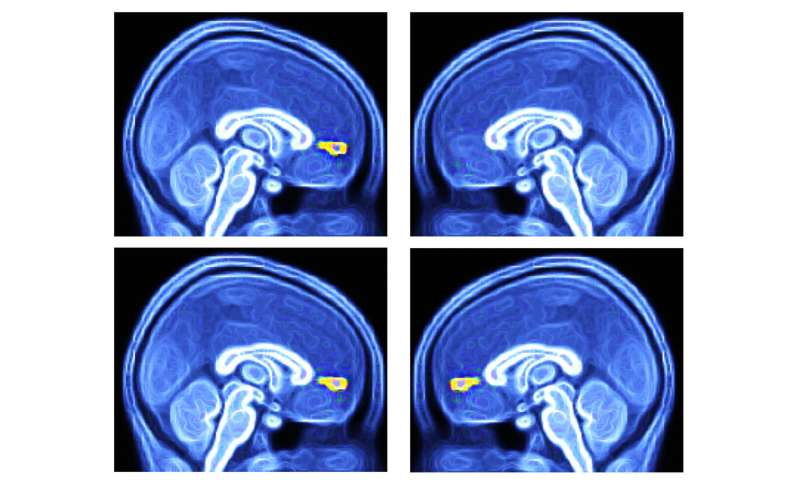 Scientists succeed in testing potential brain-based method to diagnose autism