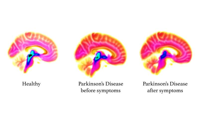 Study reveals roots of Parkinson's in the brain