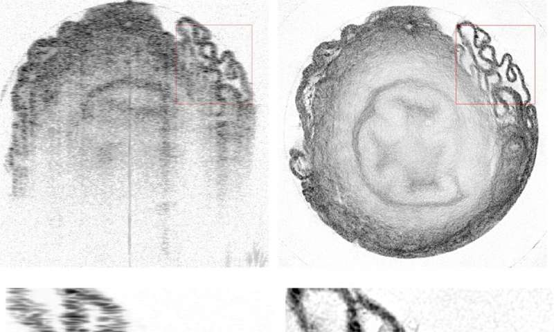 Machine learning increases resolution of eye imaging technology