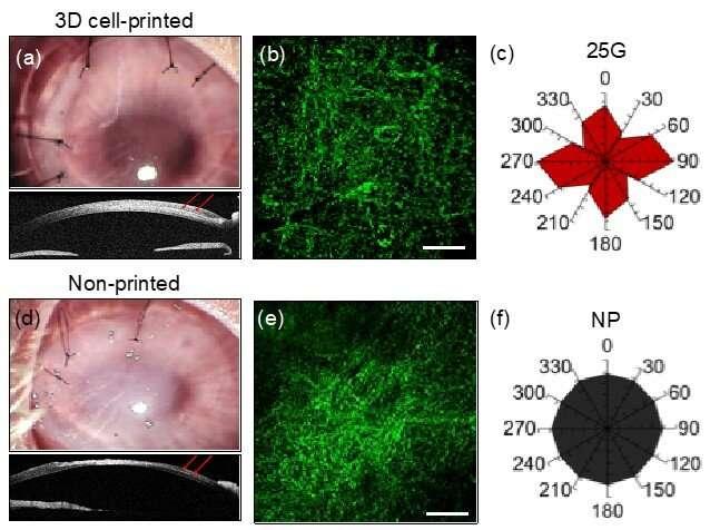 3D printed artificial corneas similar to human ones