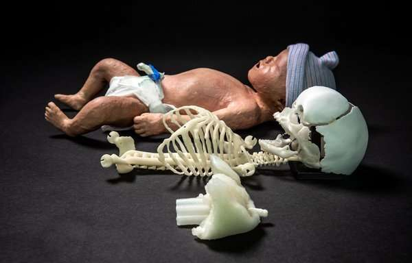 3-D printed baby dummy for better resuscitation training