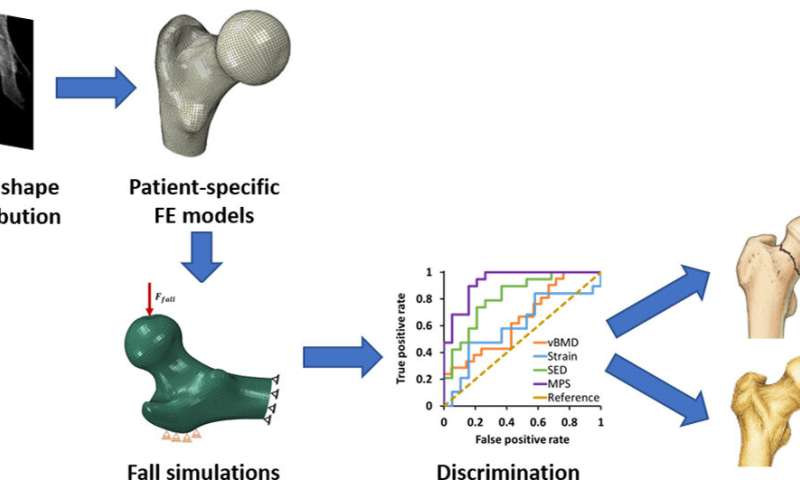 3D simulation of bone densitometry predict better the risk of fracture due to osteoporosis