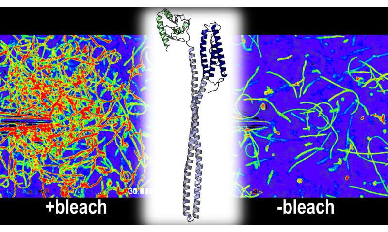 New research reveals that a human stomach pathogen is attracted to bleach