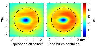 Researchers have identified areas of the retina that change in mild Alzheimer's disease