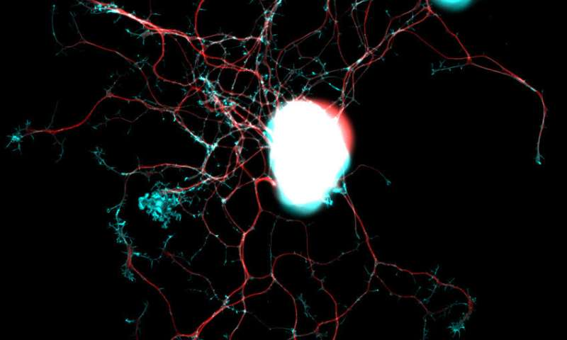 Researchers identify key proteins for the repair of nerve fibers