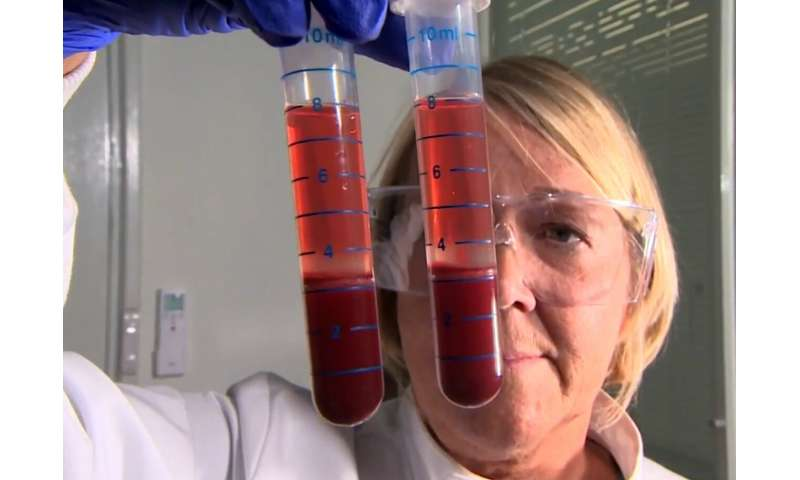 New blood test for human TB may also identify people at most risk