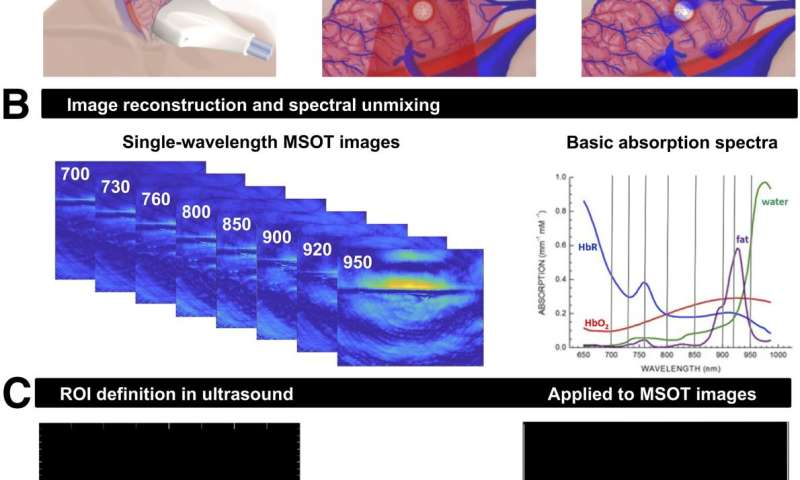 Optoacoustic imaging shows potential for noninvasive diagnostics for thyroid disorders