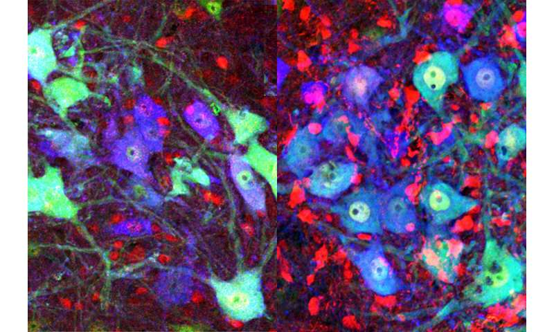 Researchers identify molecular process that could accelerate recovery from nerve injuries