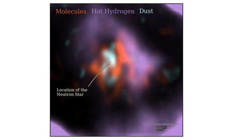 Supernova 1987A, neutronová hvězda