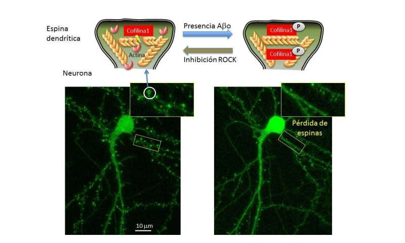 Neuronal cytoskeletons involved in Alzheimer's disease