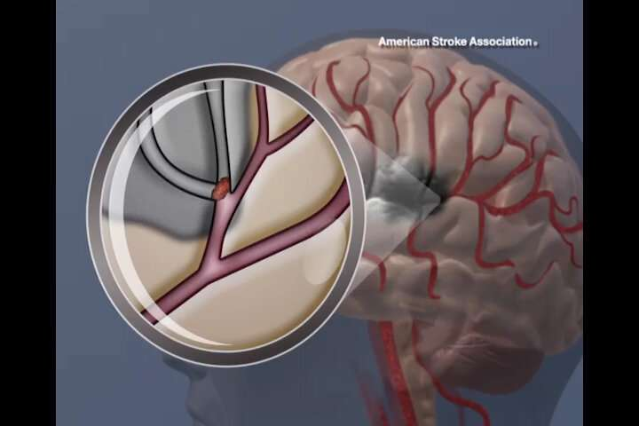 Target: Stroke program demonstrates substantially improved outcomes in adherence to stroke care guidelines