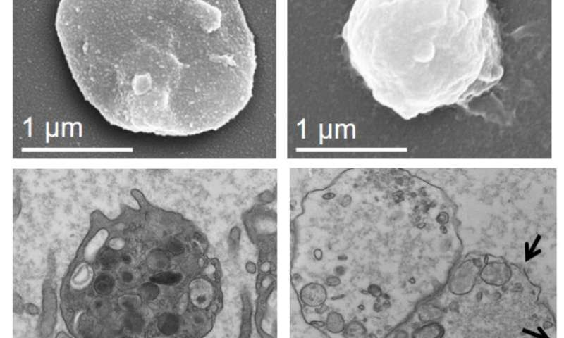 Platelet 'decoys' outsmart both clots and cancer