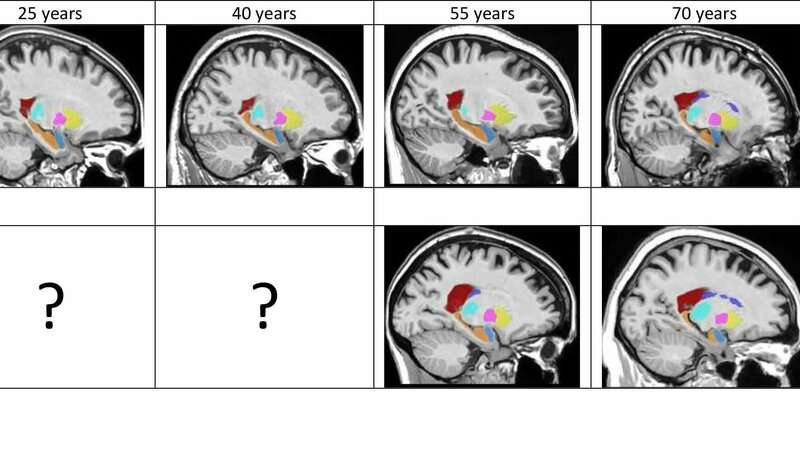 How does the brain change over the course of Alzheimer's?