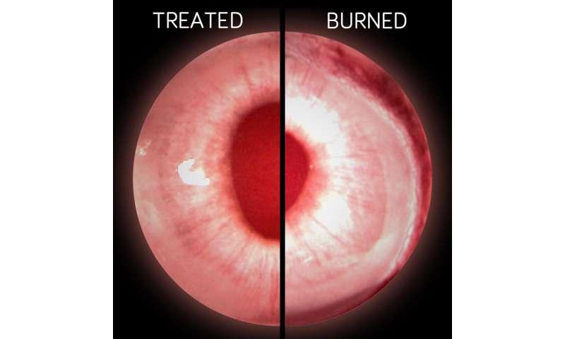 A soft spot for stem cells helps cornea healing