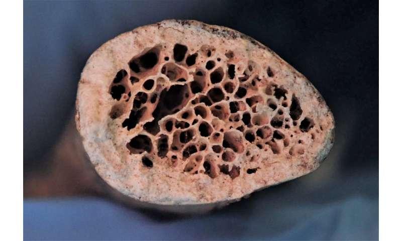 Evidence of bone disease found in medieval skeletons