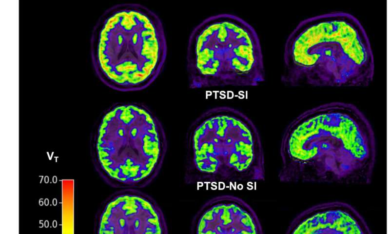 Biomarker reveals PTSD sufferers at risk of suicide