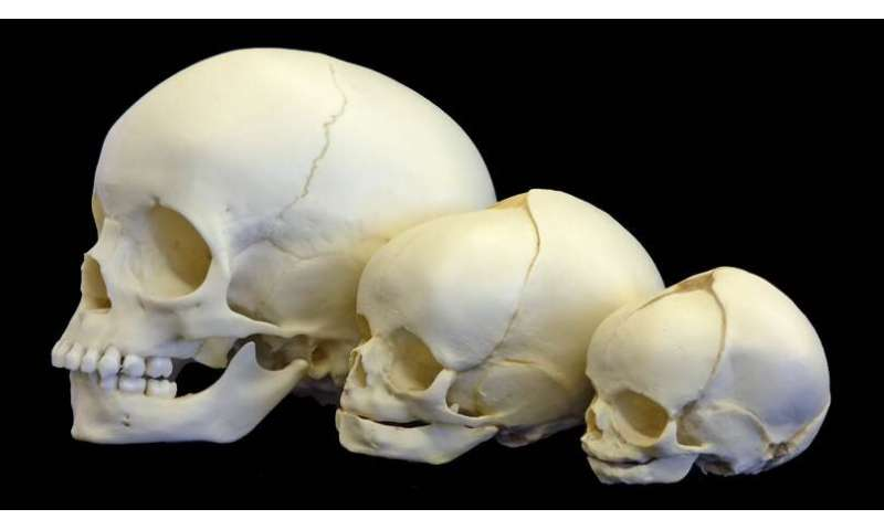 The relationship between human self-domestication and brain evolution