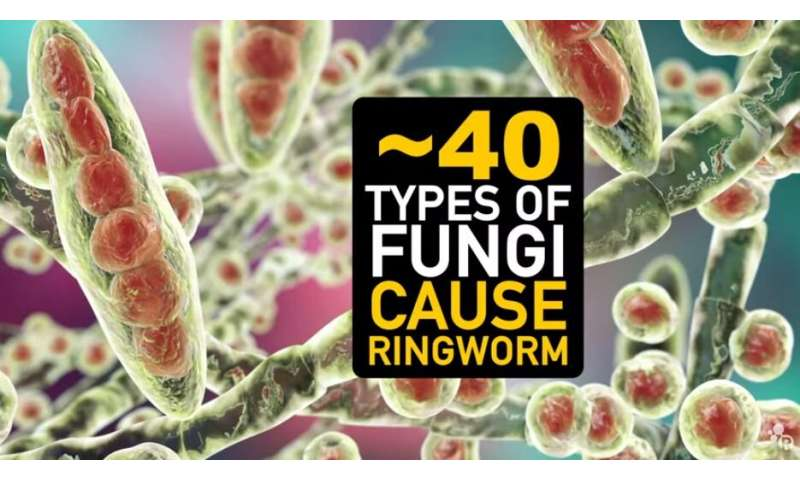 Video: What is the chemistry behind ringworm?