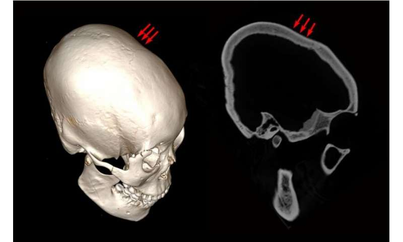 Researchers in China find some of the oldest examples of cranial modification
