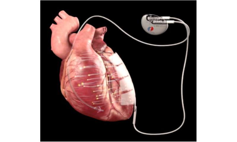 New technique uses microcurrent to exercise heart muscle