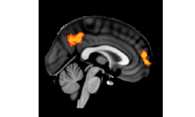 White matter affects how people respond to brain stimulation therapy aimed at depression and stroke