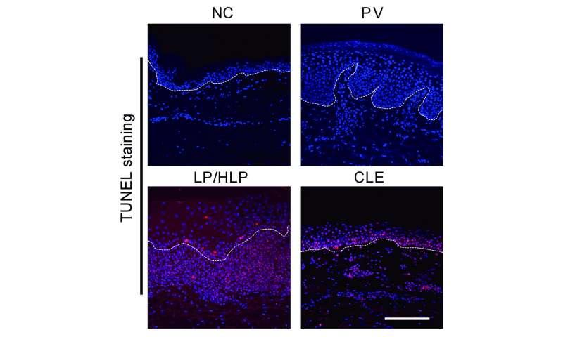 Arthritis treatment could provide relief for lichen planus skin rash