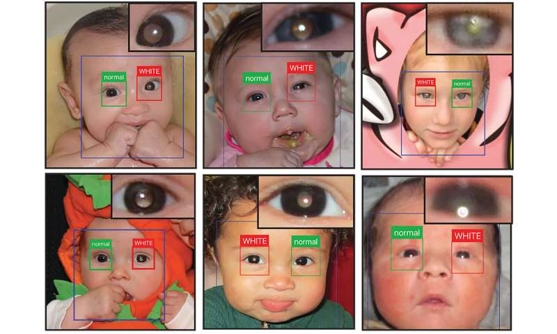 "App can detect ""white eye"" in children's photos to spot possible problems"
